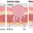 Cancer muscle