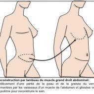 Comment se muscler les seins