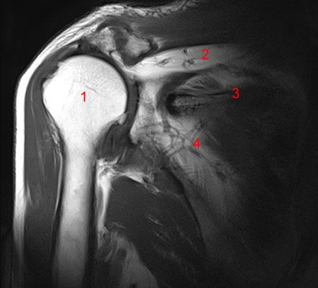 dégénérescence des muscles