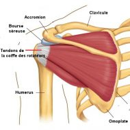 Douleur muscle omoplate