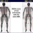 Muscle bmi