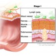 Muscle cancer symptoms