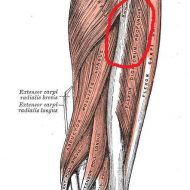 Muscle du bras douloureux
