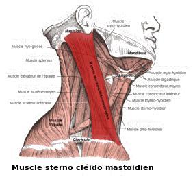 muscle du cou douloureux