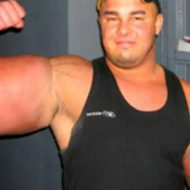 Muscle synthol