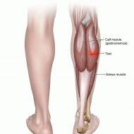 Muscle tear injury