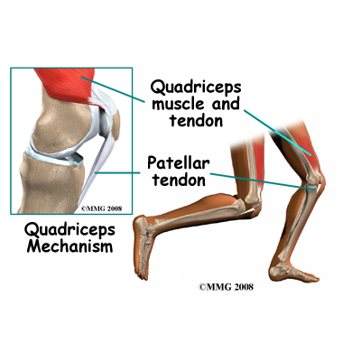 muscle tendonitis