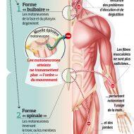 Paralysie des muscles