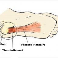 Rupture du muscle plantaire