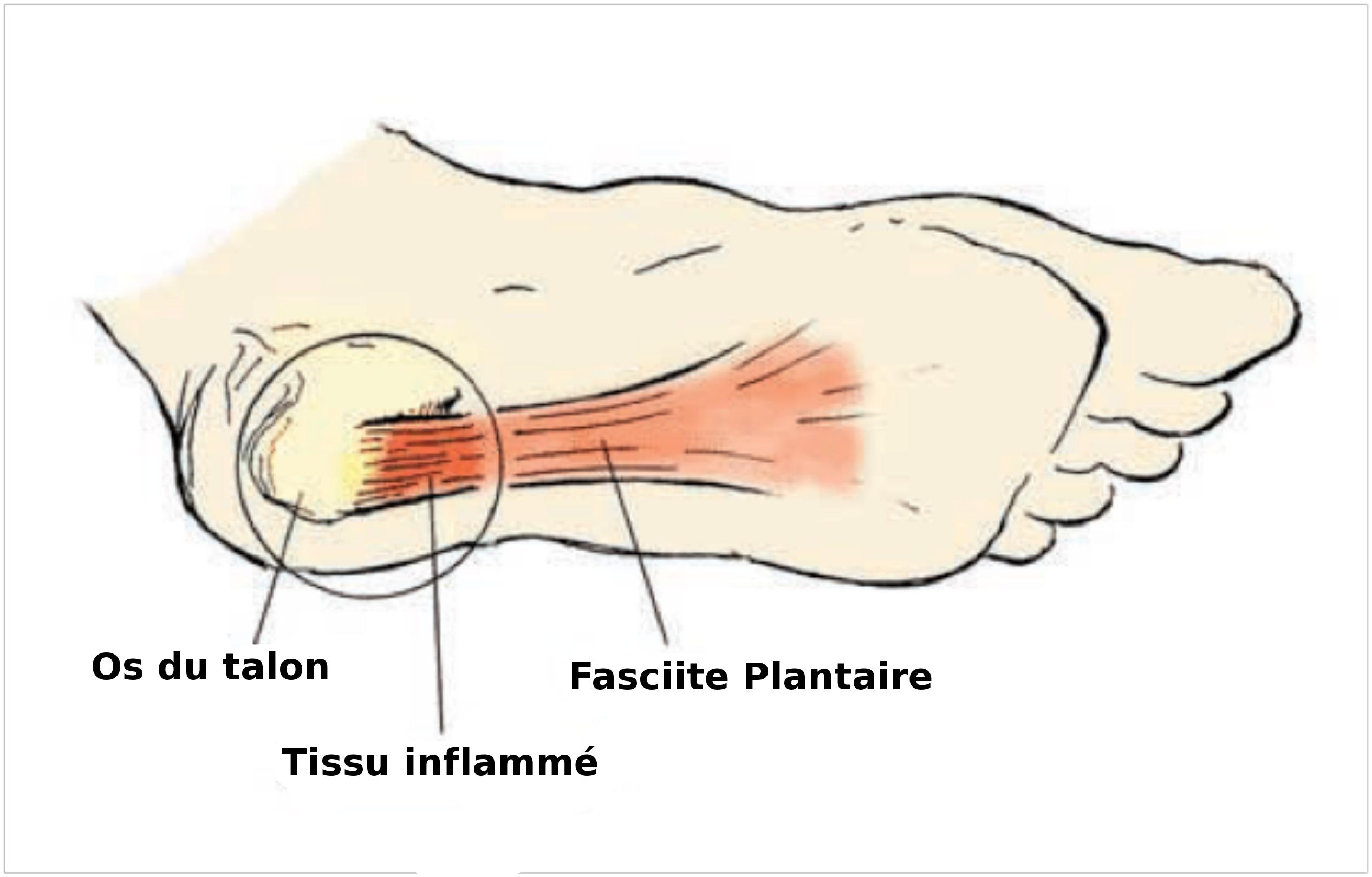 rupture du muscle plantaire