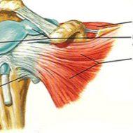 Tendinite épaule musculation
